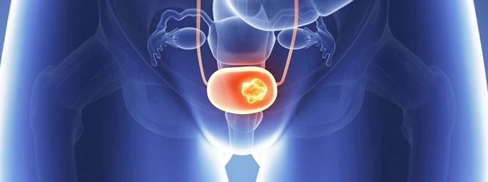 Dépister et traiter le cancer de la vessie